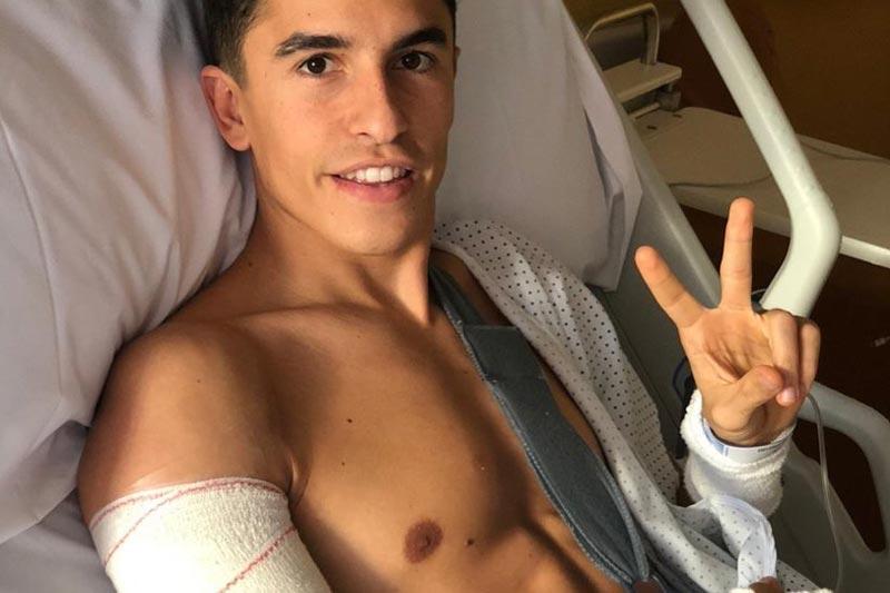 Kondisi Lengan Kanan Marc Marquez Memuaskan